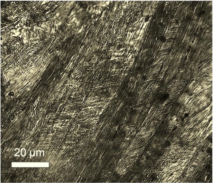 shock microtwinning calcite
